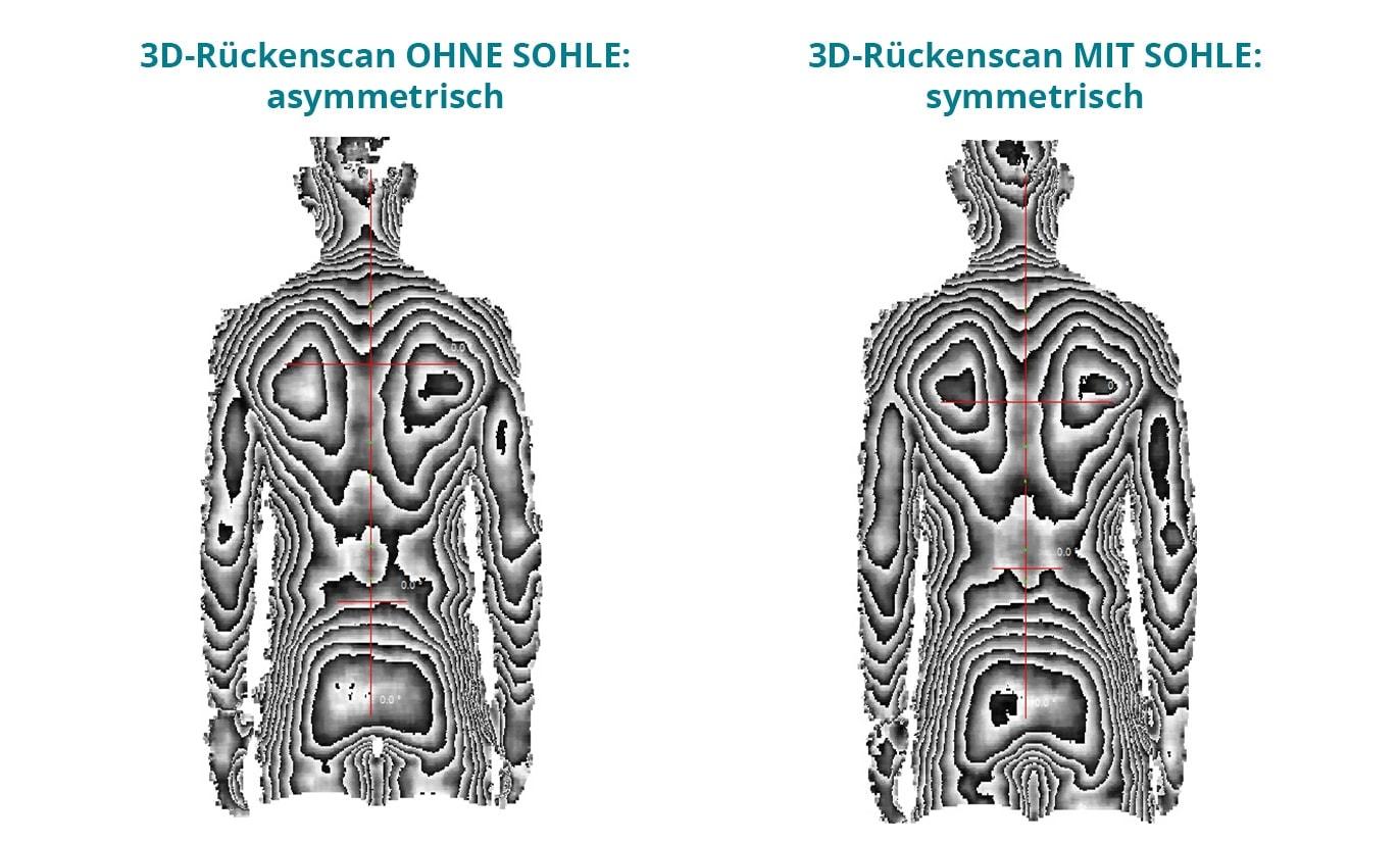 Vergleich 3D Rückenscan