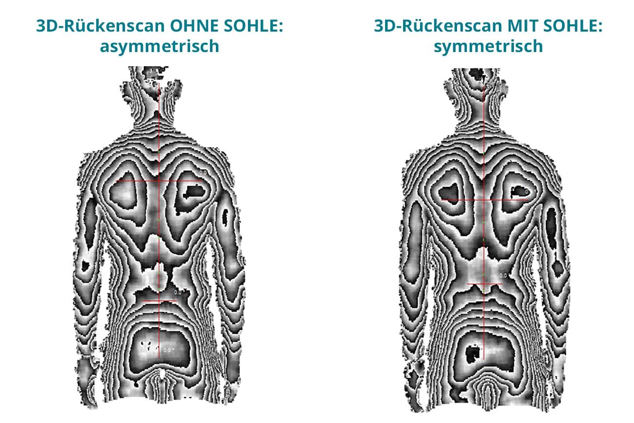 3D-Rückenscan zeigt Rücken vor und nach dem Einsatz von sensomotorischen Sohlen